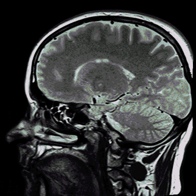 Scan of human brain for neurological biomarker discovery